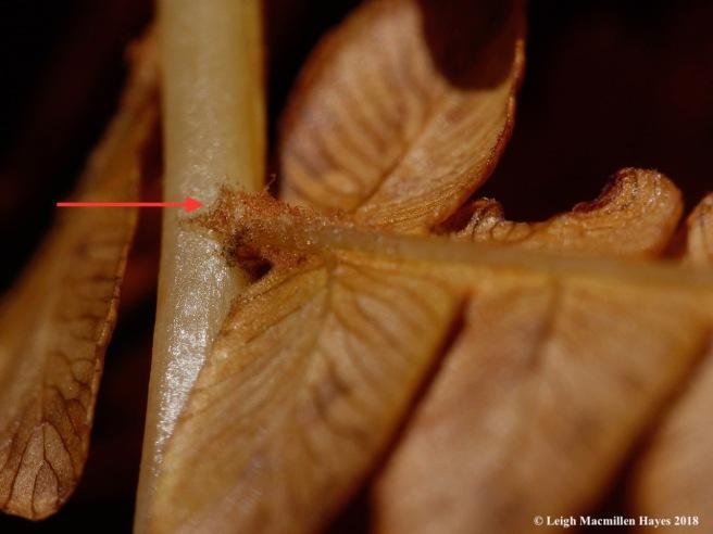 1b-hairy underarm